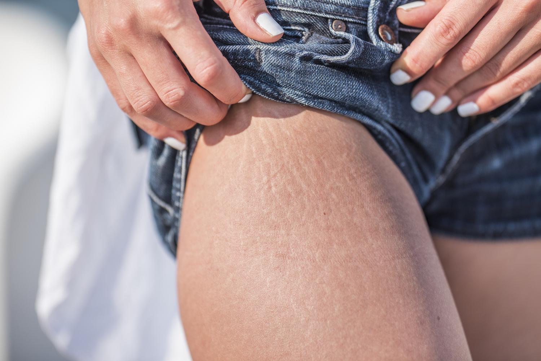 consigli-contrastare-cellulite